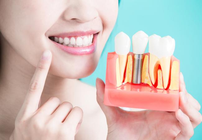 Зубы за 1 день. Удаление слюнного камня