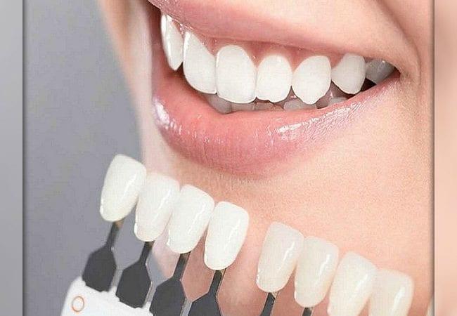 Отбеливание зубов в г. Киев
